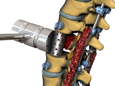 Lumbar Fixation - Insertion Vertebral Cage