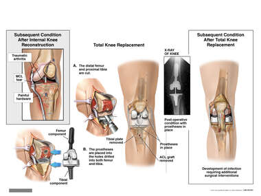 Internal Knee Reconstruction, Eventual Total Knee Replacement and Additional Complications