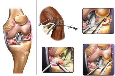 Additional Pathologies and Surgery of the Left Knee