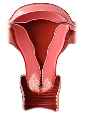 Cervical Cancer, Cut-away View
