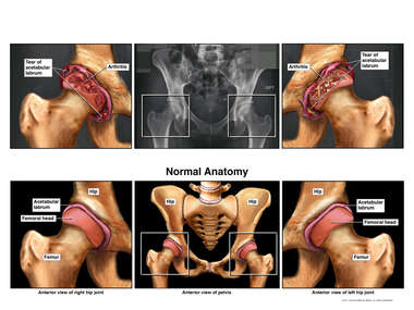 Bilateral Hip Abnormalities