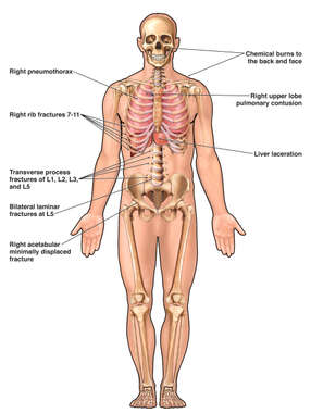 Anterior Male Skeletal and Thoracic Figure for Injury Location