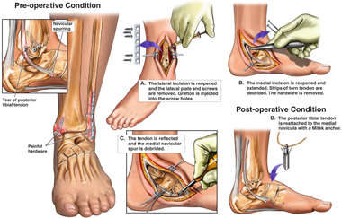 Traumatic Complications of Left Ankle Injury with  Surgical Repairs