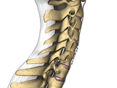 Cervical Spine with C5-6 Fusion