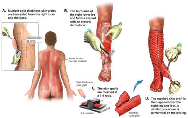 Skin Grafting of Lower Legs