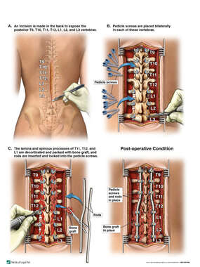 Multilevel Posterior Spinal Fusion