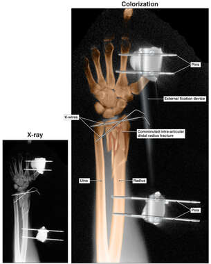 Post-operative Condition of the Arm with External Fixator