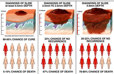 Progression of Melanoma