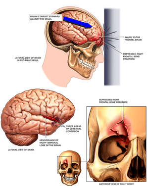 Frontal Impact with Post-accident Head and Brain Injuries