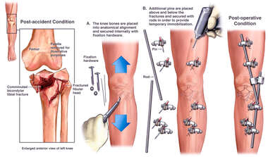 Internal Fixation and Immobilization of Left Knee Fractures