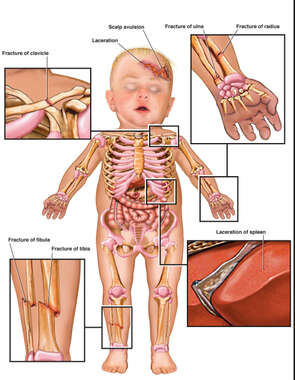 Infant Child Figure with Post-accident Injuries to the Scalp, Collar Bone, Forearm, Lower leg and Liver