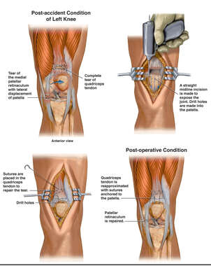 Traumatic Quadriceps Tendon Tear with Surgical Repair