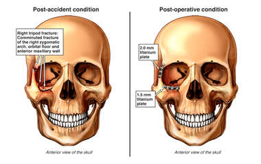 Right Sided Facial Fractures with Surgical Fixation