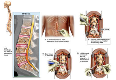 Continued Lumbar Spine Compression with Surgical Discectomy