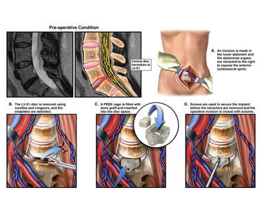 L5-S1 Injury with Anterior Discectomy and Fusion Procedure