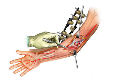 Fasciotomy of the Muscles of the Forearm