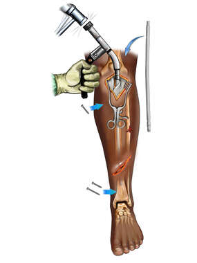 Tibial Fracture Fixation with Intramedullary Rod