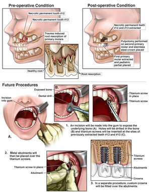 Impaction and Surgical Repair of Multiple Primary Teeth