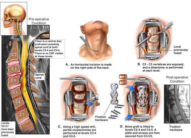 Cervical Spine Injuries with Double Level Discectomy and Fusion