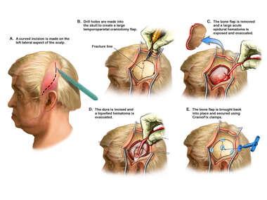 Craniotomy with Evacuation of Epidural Hematoma