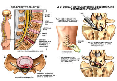 L5-S1 Lumbar Disc Herniation with Surgery