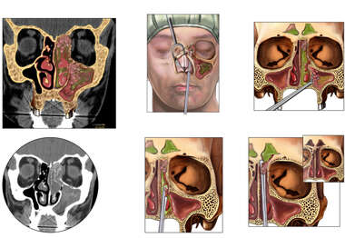 Allergic Fungal Sinusitis with Endoscopic Surgical Resection