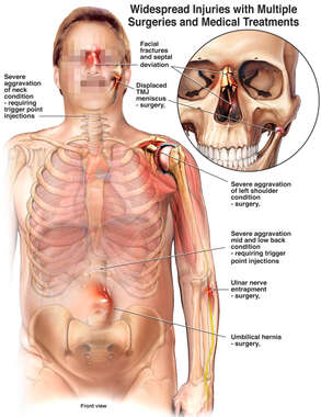 Injuries to the Nasal Region, Left Shoulder, Left Elbow and Umbilicus