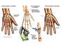 Left Hand Fractures with Surgical Fixation