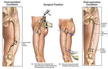 Femur Fracture with Surgical Fixation