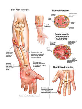 Post-accident Injuries to the Left Arm with Compartment Syndrome