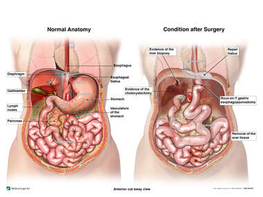 Revised Gastric By-Pass