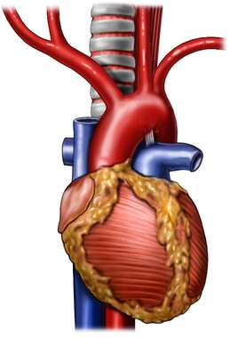 Heart with Aorta and Branches, Anterior View
