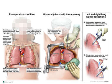 Bilateral Lung Metastasis with Bilateral Wedge Resections
