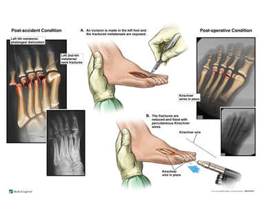 Left Foot Fractures with Surgical Fixation