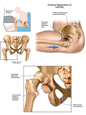 Post-accident Hip Fracture/Dislocation