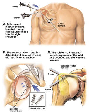 Arthroscopic Surgical Debridement and Repair of the Right Shoulder