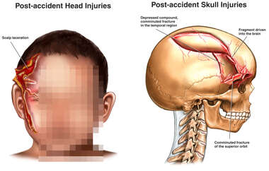 Child with Post-accident Head Injuries and Skull Fractures