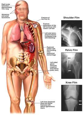 Male Torso and X-Ray Films Revealing Injuries of the Shoulder, Spleen, Pelvis and Knee