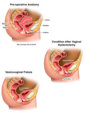 Development of Vesicovaginal Fistula