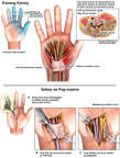 Pagtistis ng Carpal Tunnel Syndrome