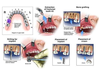 Extraction of Tooth No. 3 with Surgical Implant Placement