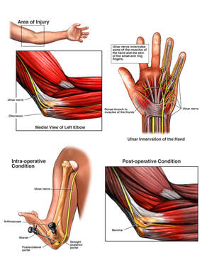 Ulnar Nerve Entrapment (Cubital Tunnel Syndrome) with Arthroscopic Debridement
