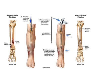 Surgical Fixation of Lower Leg Fractures