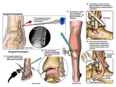 Left Ankle Surgeries
