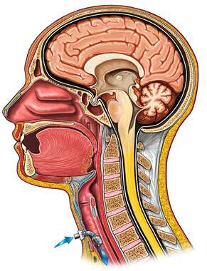 Head and Neck with Tracheal Intubation, lateral cutaway view