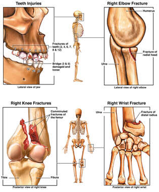Right Leg and Teeth Injuries with Later Right Arm Fractures