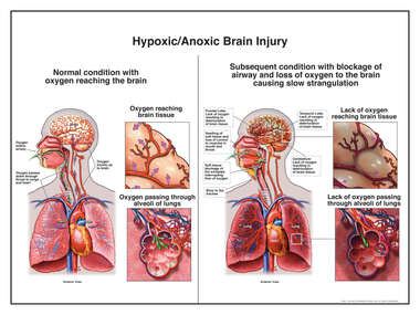 Hypoxic/Anoxic Brain Injury