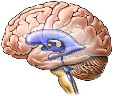 Brain with Ventricles (Lateral View)
