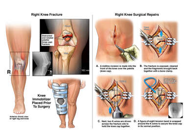 Displaced Right Knee Patellar (Knee Cap) Fracture and Surgical Repairs