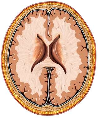 Brain with Lateral Ventricles, Cut-away View